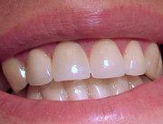 Лечение зубного камня,  кариеса (Харьков)