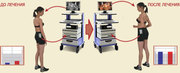 Комплекс для коррекции осанки и лечения сколиза